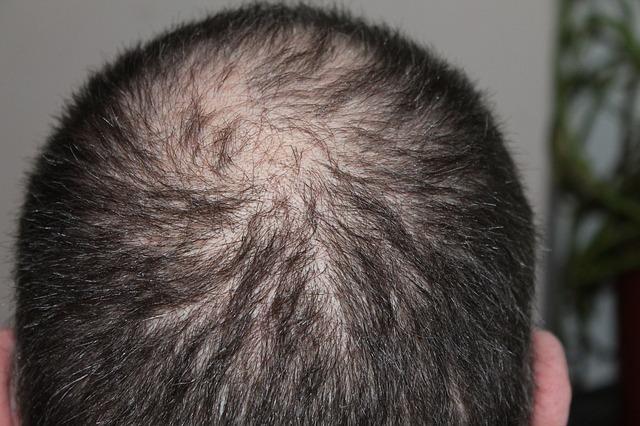 Health Tips-Hair Fall Control Tips Naturally